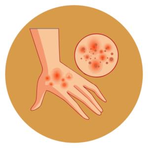 Za dermatitis